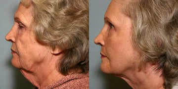 Neck Lift before and after photos