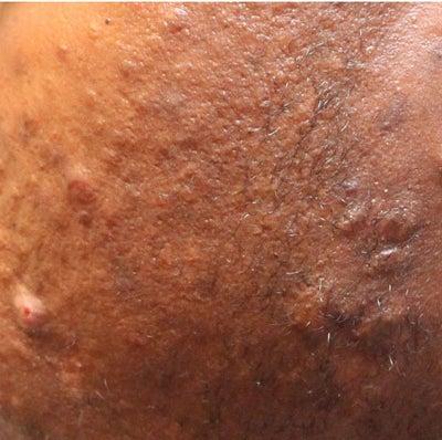 keloid vs hypertrophic scar
