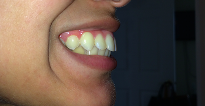 Can I straighten my teeth without braces? Spring retainer ...