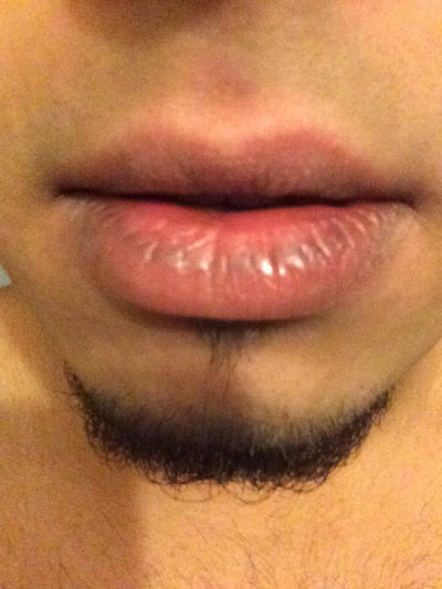 how to get rid of whitehead on bottom lip
