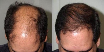 Hair Transplant before and after photos