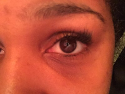 I have thin skin and discoloration under my eyes. Even ...