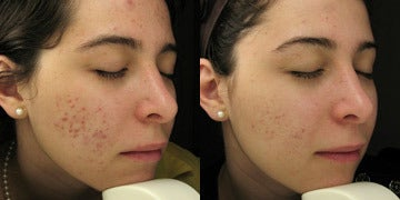 Acne Scars Treatment before and after photos