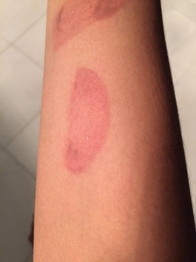 Is My Salt And Ice Challenge Scar Permanent I Ve Tried