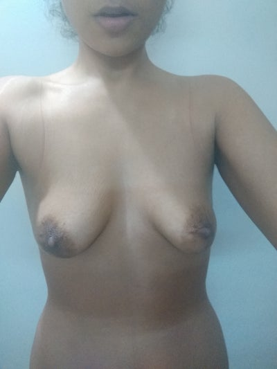 Are My Breasts Normal Or Do I Need To Look Into It -3848