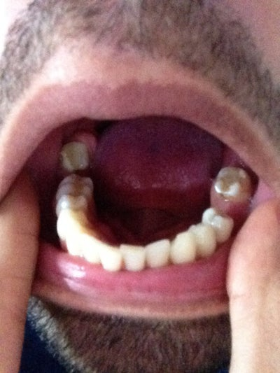 how to get over missing teeth