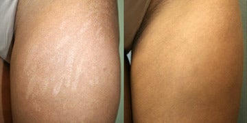 Stretch Marks Treatment before and after photos