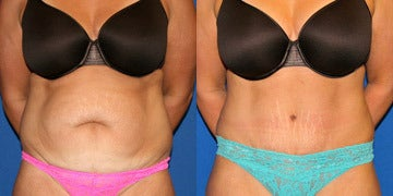 Vaser Liposuction before and after photos