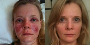 Derma Roller before and after photos