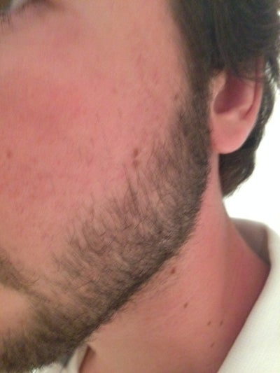 What should i do to get rid of acne