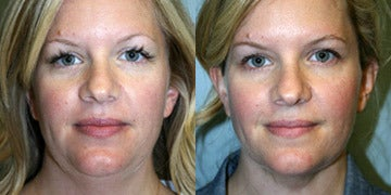Chin Liposuction before and after photos