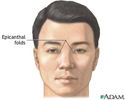 Can the Excess Skin from a Rhinoplasty Be Used to Make an ...