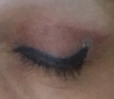 Eye liner tattoo how can i remove it photo doctor for Tattoo lining tips