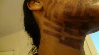 Ipl Asian Skin 83