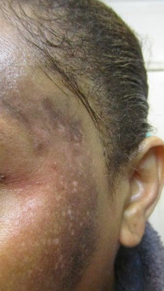 Facial Blistering 48
