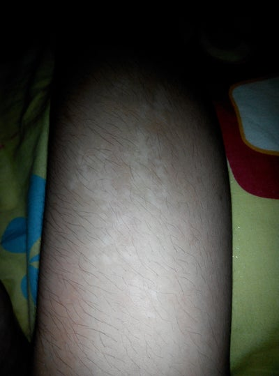 How Do I Get Rid Of White Spots On My Legs 109