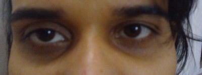 Hollow Eye at 25 Age , Because of Dehydration and Stress ...