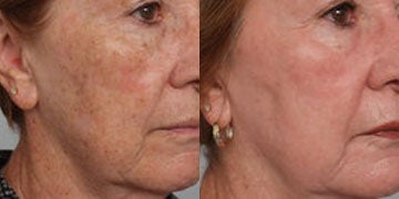 Age Spots Treatment before and after photos