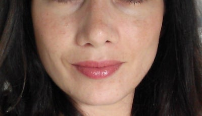 Is my nose asymmetry due to internal scar tissue, uneven ...