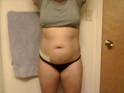 Would I Need a Tummy Tuck After Getting Lipo from a Bbl ...
