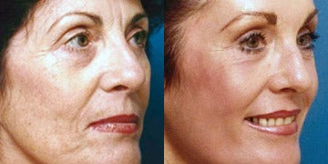 Does C02 Laser Reduce Elasticity Of The Face Or Cause Fat Atrophy