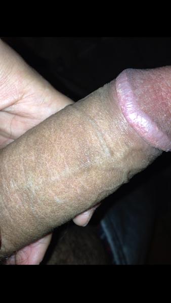 Dark Penis Head 81