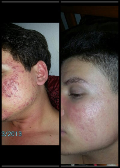 how to get rid of acne doctor
