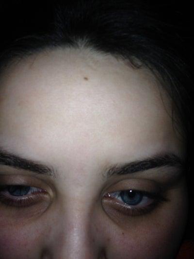 I have very dark, hollow, sunken eyes. It was hereditary ...