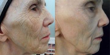 Microneedling Before and After Photos