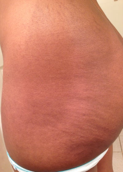 I have moderate stretch marks along my hips, buttocks and ...