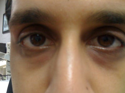 how to treat hollow under eyes