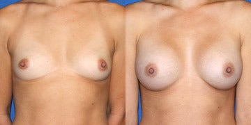 Sientra Breast Implants before and after photos