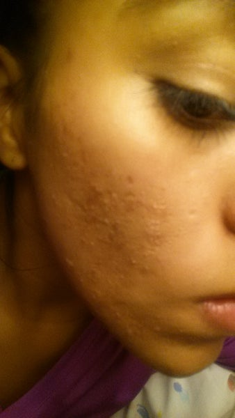 how to get rid of acne scars and pores