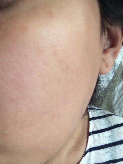 Waxing Neck Hair: I Have Brown Pigmentation On My Neck After Laser Hair