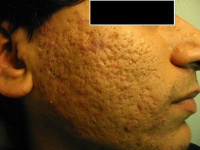 Severe Acne Scars Treatment Severe Acne Scars - Be...