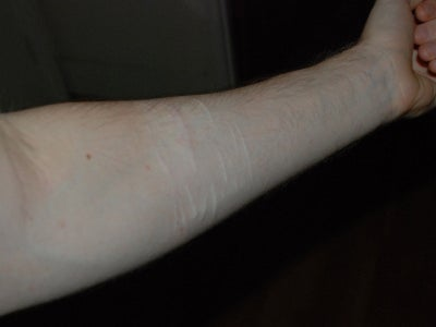 Getting Rid Of Arm Scars From Self Harm Scar Removal Forum