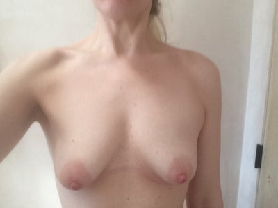 Fix my breast near missouri