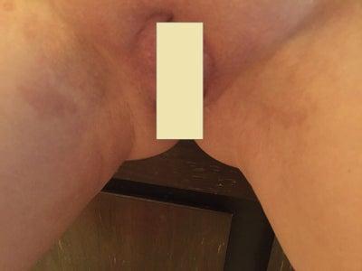 Vulva hair removal