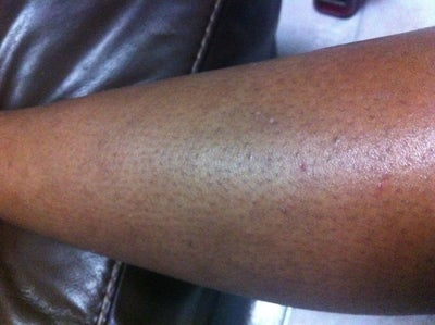 how to get rid of shaving scars