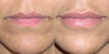 Lip Augmentation before and after photos