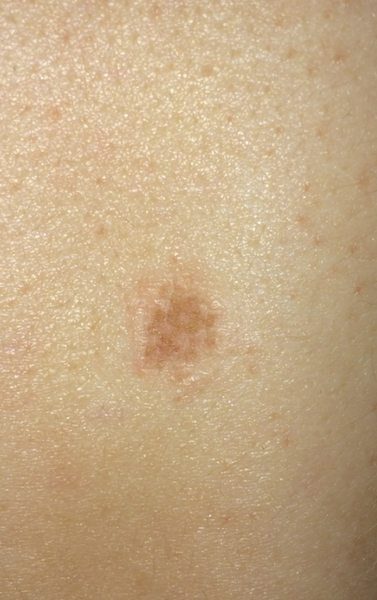 Does This Look Like Skin Cancer Photo Doctor Answers Tips