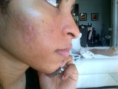 Preventing scarring after facial peel