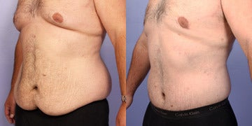 Body Lift before and after photos