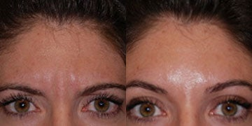Botox for Migraines before and after photos