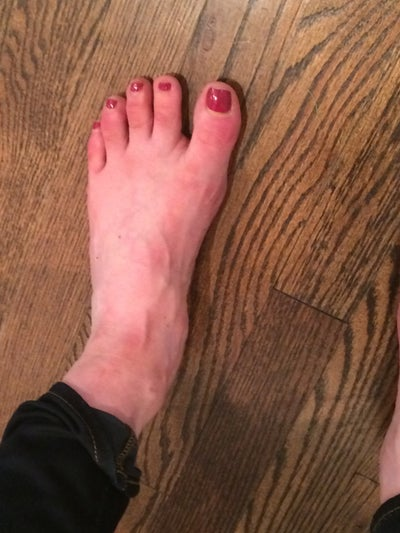 Discoloration Post Ambulatory Phlembectomy on left foot ...