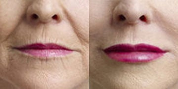 Collagen Injection before and after photos