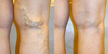 Vein Treatment before and after photos