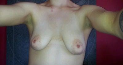 Vicker grade i breast asymmetry