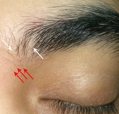 Eyebrow Hair Loss, Flaking and Scabbing, Is this a Thyroid ...
