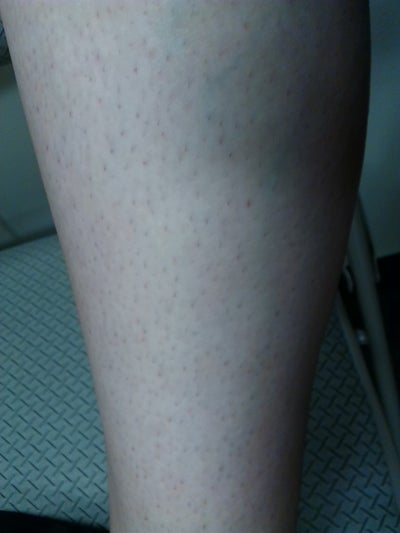 how to get rid of ingrown pimples on legs